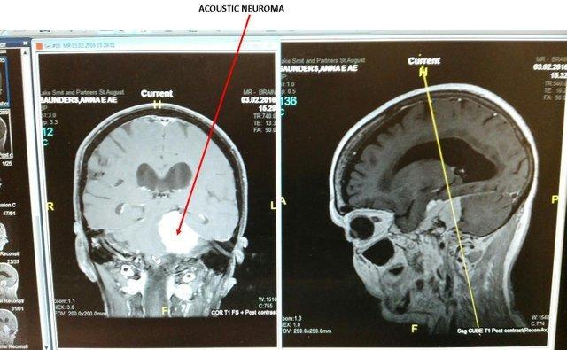 MOM MRI.jpg