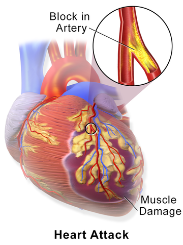 Myocardial Infarction or Heart Attack