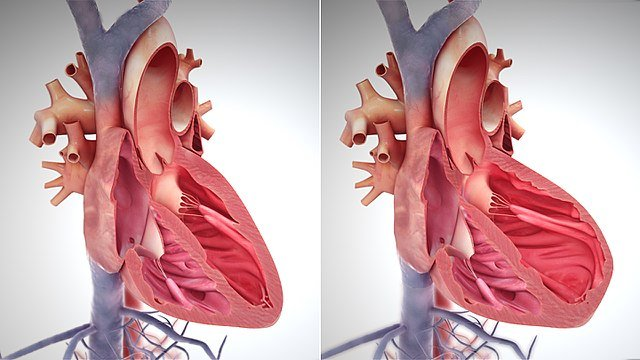 Model of a normal heart, with contracted muscle (left); and a weakened heart, with over-stretched muscle (right)
