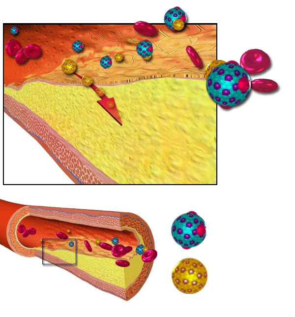 Atherosclerosis and lipoproteins