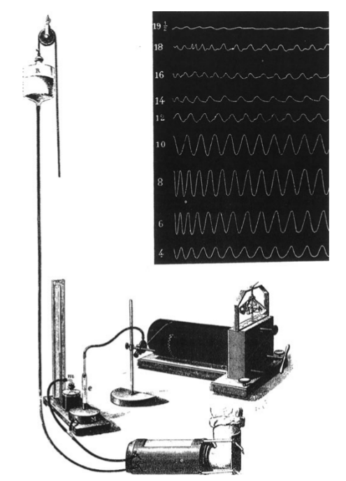 Ancestor of sphygmomanometer
