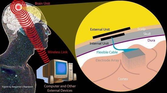 Neuralink brain interface
