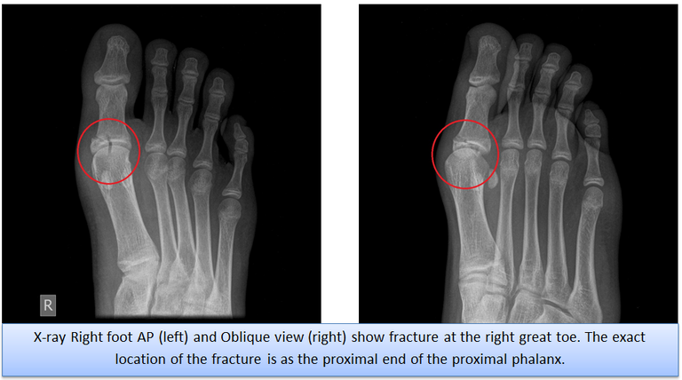 x_ray_right_foot.png