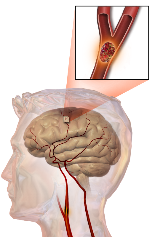 Illustration of an embolic stroke, showing a blockage lodged in a blood vessel.