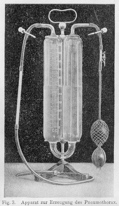 pneumothorax device Carlo_Forlanini Wellcome 4.0 credit line.jpg