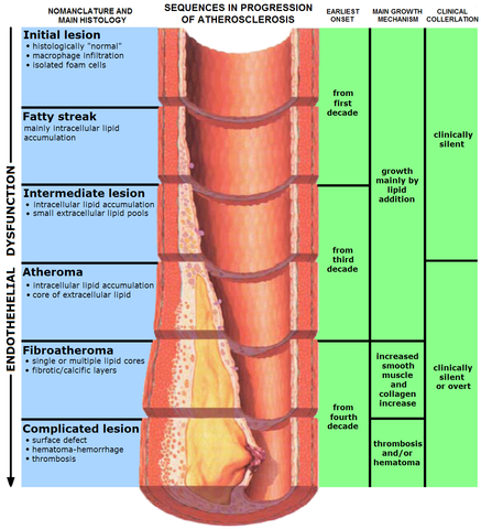 Stages of endothelial dysfunction in atherosclerosis
