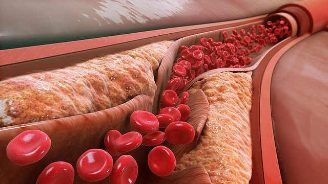 Narrowed arterial blood vessel blocked with an anteroma.
