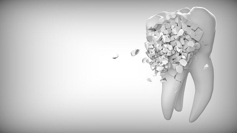 tooth-2874551_1280.jpg