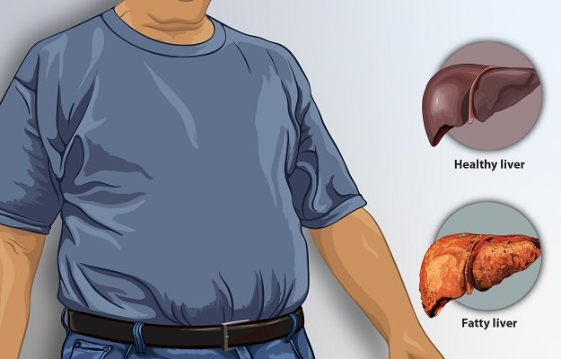 Depiction_of_a_man_suffering_from_fatty_liver 4.0.jpg