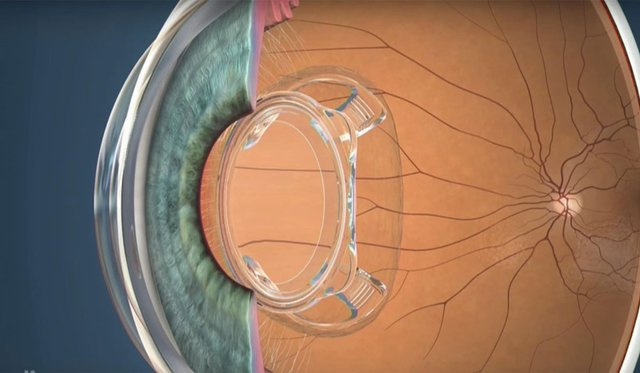 iReviews-bionic-lens-ocumetics_3.jpg