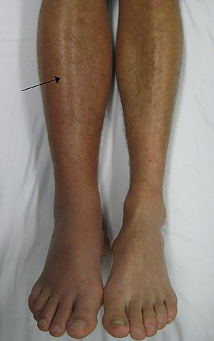 Deep vein thrombosis/ right leg