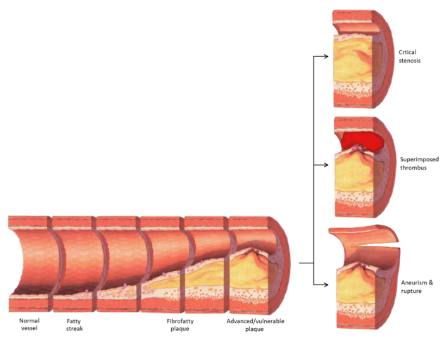 Progression of atherosclerosis to late complications