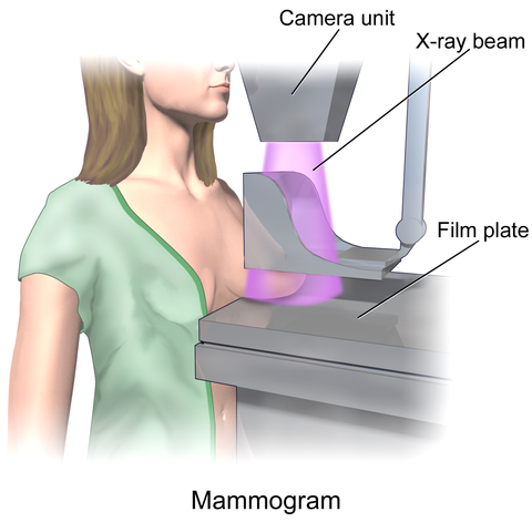 Illustration of a mammogram