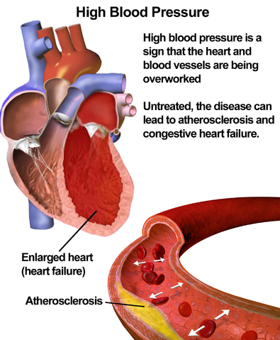 Illustration depicting the effects of high blood pressure