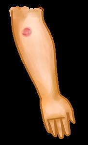 brazo1 - peq.png