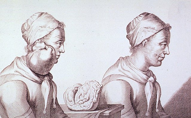 Engraving with two views of a Dutch woman who had a tumor removed from her neck in 1689
