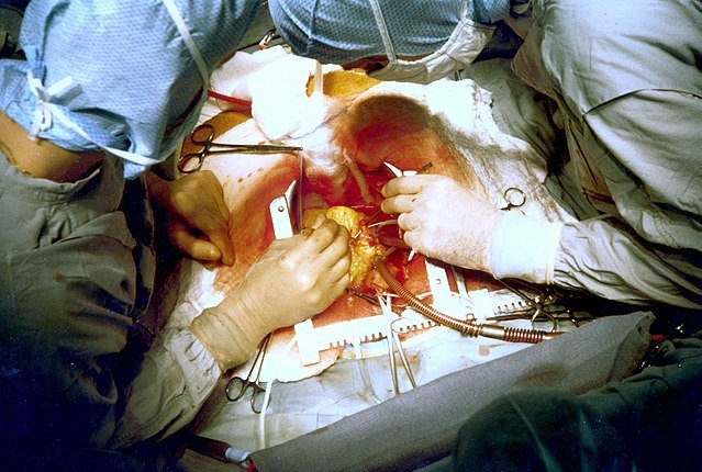 Coronary artery bypass surgery during mobilization (freeing) of the right coronary artery from its surrounding tissue, adipose tissue (yellow). The tube visible at the bottom is the aortic cannula (returns blood from the HLM)