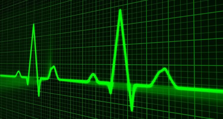Cardiogram - BS.png