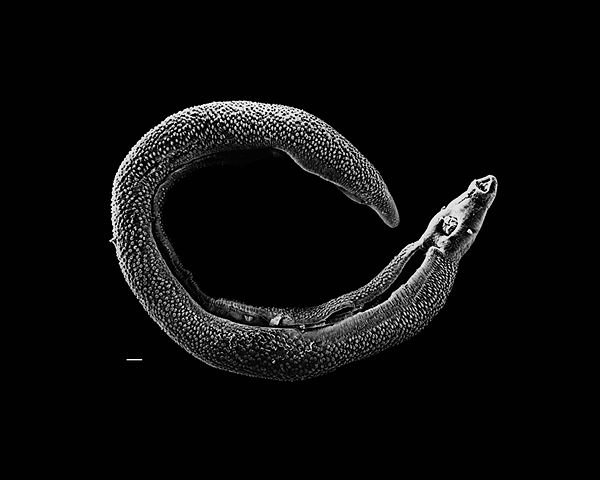 Electron micrograph of an adult male Schistosoma parasite worm. The bar (bottom left) represents a length of 500 μm.