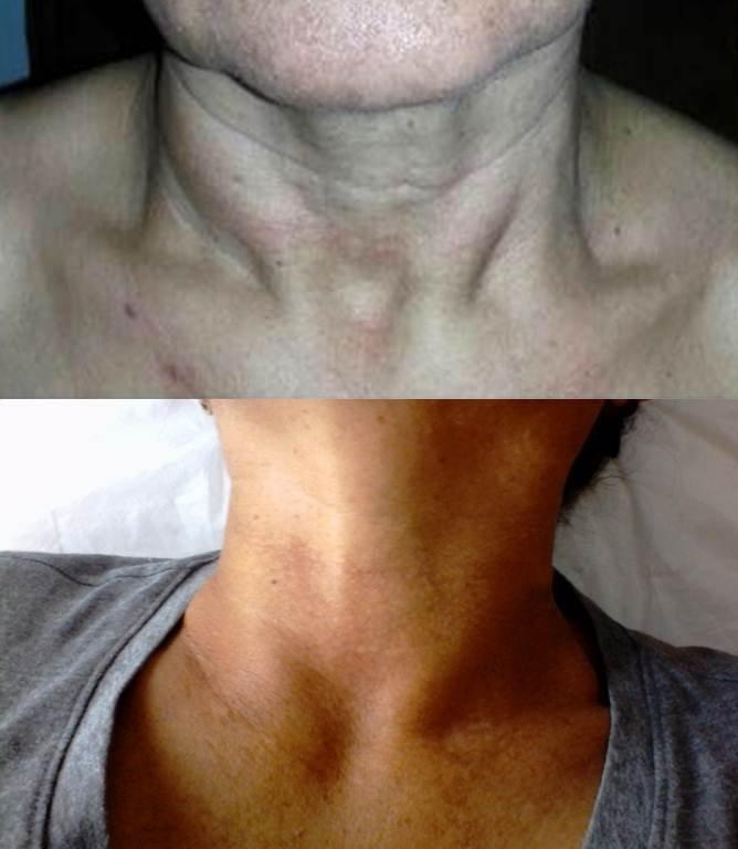 cuello norma.jpg