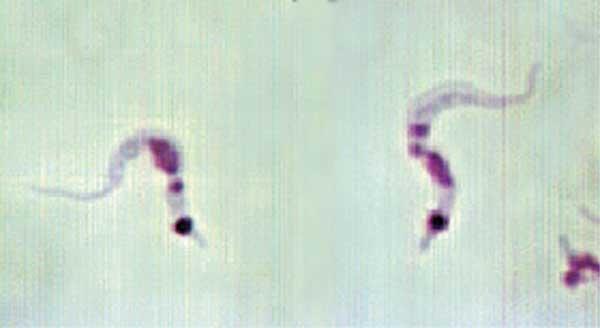 Trypanosoma_cruzi_hindgut.jpg