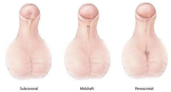 Hypospadias-lg.jpg