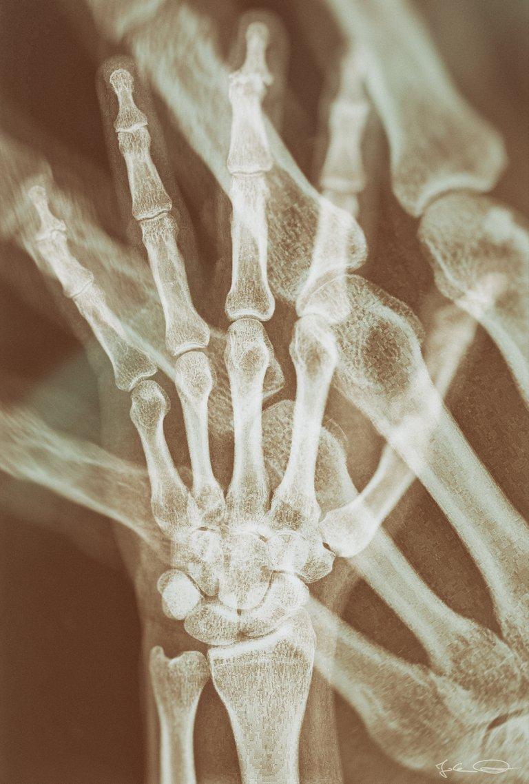 Hive AlphabetHunt X-ray
