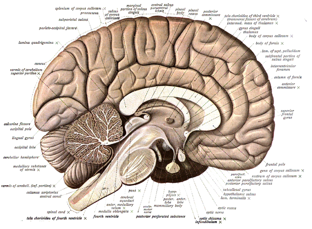 Human brain bisected in the sagittal plane, showing the white matter of the corpus callosum